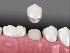 4.1-Dental-crowns.jpg