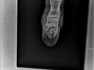 Оcтеомиелит копытной кости