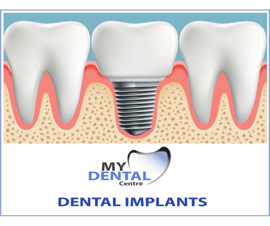 Best Implant Dentist Near Me: Food That Benefit The Dental Health