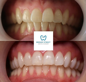 Tooth Whitening Hereford Broad Street Dental Surgery Hereford