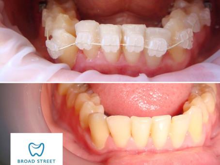 Beware DIY Orthodontics