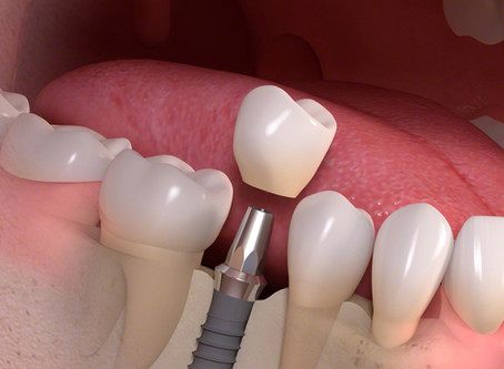 Dental Implant's- A New Begining