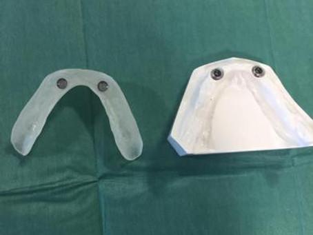 FDI – Implant Retained Dentures