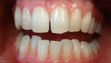 Dentist Andrew Farr QST – Wedding