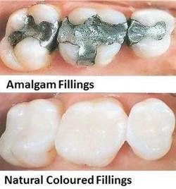 Fillings (Restoration)