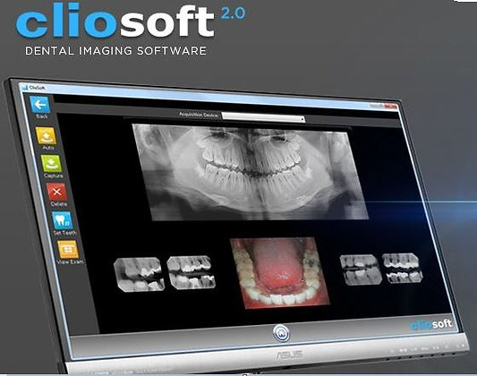Digital X-Ray Imaging Software