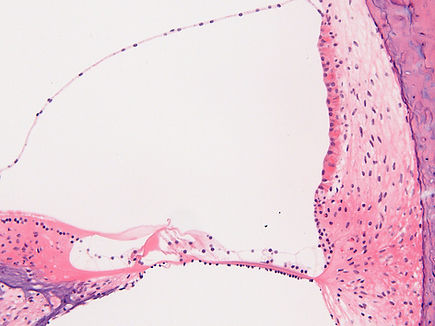 Chin Hair cell  & stria vascularis norma