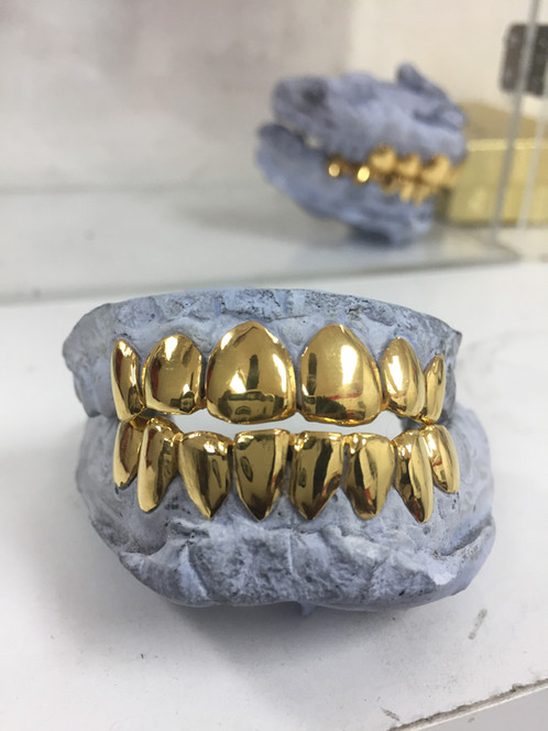 Dental Gold Grillz NPG gorgeousgrillz