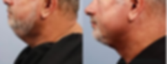 Neck Rejuvenation b0.PNG