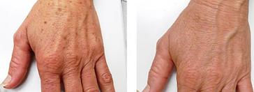 hand rejuvenation2.PNG