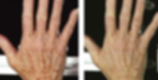 hand rejuvenation.PNG
