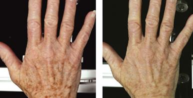 hand rejuvenation.PNG