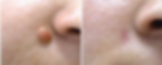 Mole Removal 2.PNG