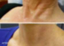 Neck Rejuvenation2.PNG