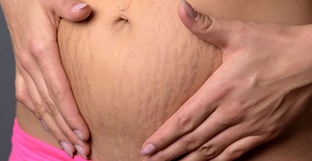Stretch Mark pic 3.PNG