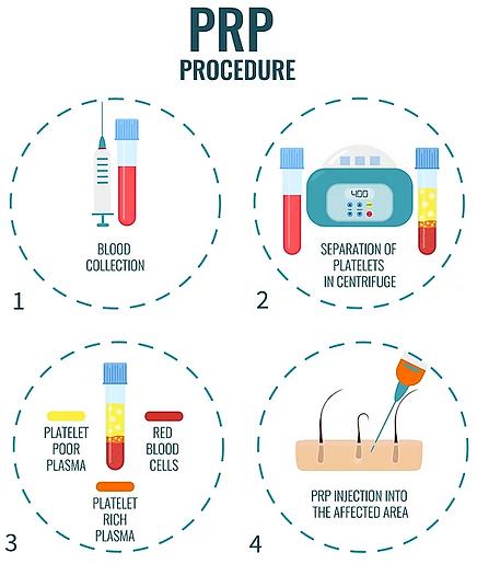 PRP Process.PNG