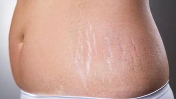 Stretch Mark pic 1.PNG