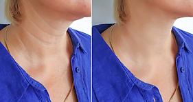 Tightening neck.PNG
