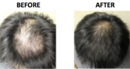 Hair loss -A.PNG