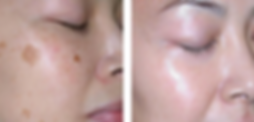 Pigment Removal.PNG