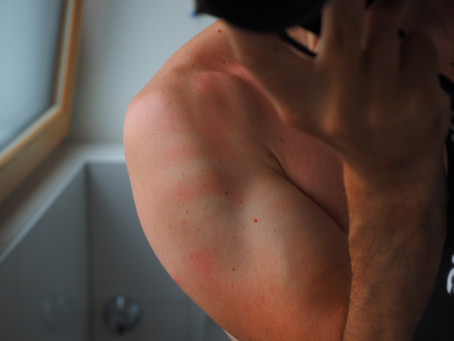 Inflammation: The Biggest Health Crisis No One is Talking About