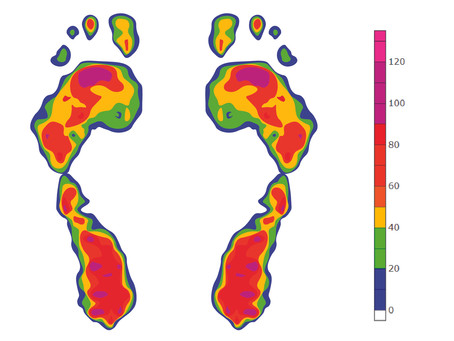 Significance of Plantar Pressure Analysis