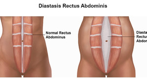 What is Diastasis Recti Abdominis (DRA)?