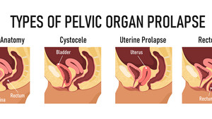 Pelvic Organ Prolapse: What Is It & How To Fix It!