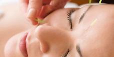 acupuncture-service-22145266.jpg