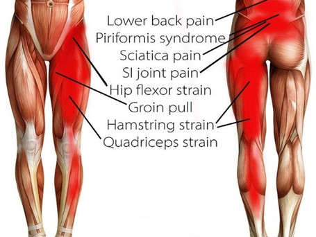 LOWER BACK PAIN?? TWO OVERLOOKED CULPRITS!!!