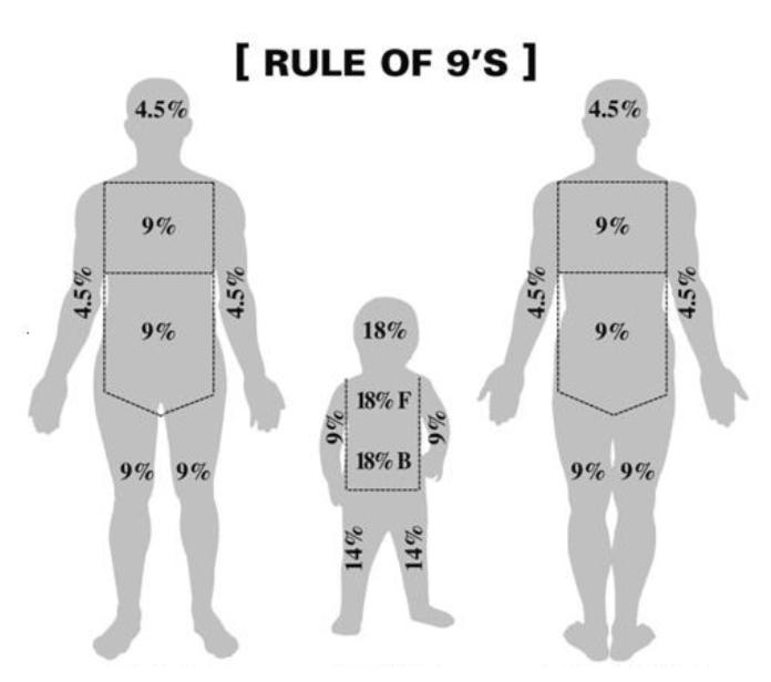 Regola del 9 per la valutazione dell'estensione di un ustione