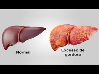 Esteatose Hepática  (fígado gorduroso)?