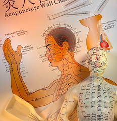 Chinese Medicine Fascia.png