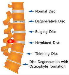 Spinal Disc Pathologies.png