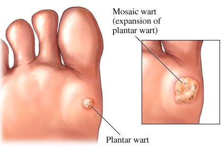 Laser Treatment for Plantar Warts