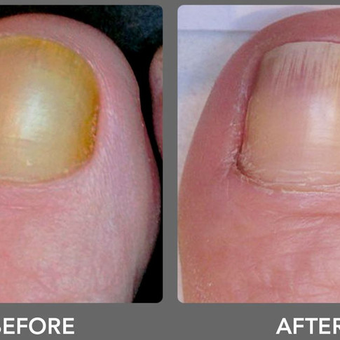 Laser Toenail Fungus Treatment Removal in West Palm Beach Before & After Photo 5