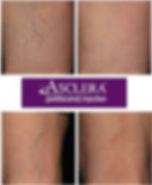 Asclera Sclerotherapy Injection Treatment for Spider Veins & Varicose Veins in West Palm Beach Gardens Jupiter Florida