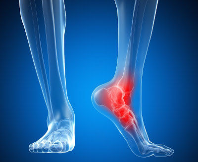 heel-pain-treatment-west-palm-beach-gard