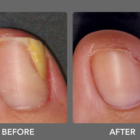 Laser Toenail Fungus Treatment Removal in West Palm Beach Before & After Photo 1