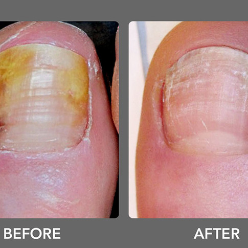 Laser Toenail Fungus Treatment Removal in West Palm Beach Before & After Photo 3