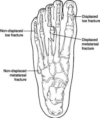 Broken Toes Broken Metatarsals Fractures