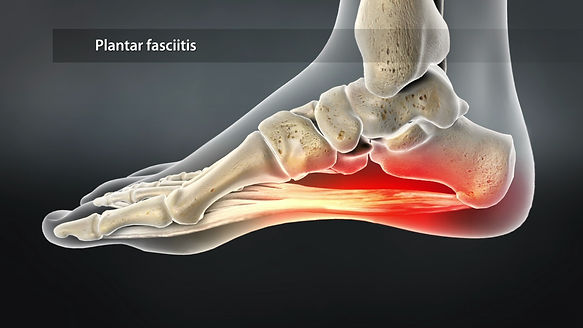 plantar-fasciitis-treatment-west-palm-be