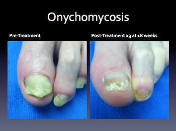 Laser Toenail Fungus Treatment Removal in West Palm Beach Before & After Photo