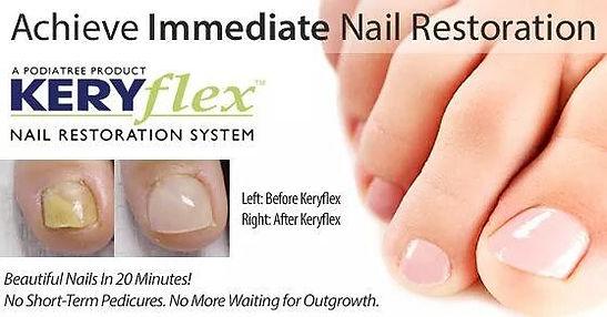 Keryflex Nail Toenail Restoration & Rejuvenation for Fungus in West Palm Beach, FL