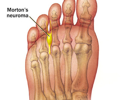 Minimally Invasive Morton's Neuroma Surgery