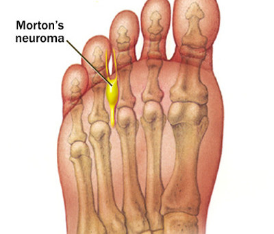 Minimally Invasive Morton's Neuroma Surgery