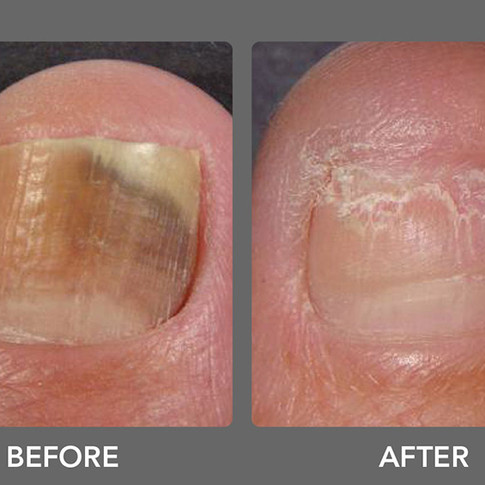 Laser Toenail Fungus Treatment Removal in West Palm Beach Before & After Photo 2