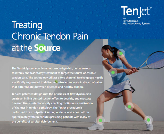 Treating Chronic Heel Pain And Achilles Tendon Pain At The