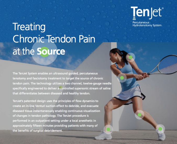 TenJet® Percutaneous Hydrotenotomy System for Achilles Tendinitis and Plantar Fasciitis by Foot & Ankle Surgeon Dr. Daniel Pero DPM in Jupiter, Palm Beach Gardens, West Palm Beach, Loxahatchee, and Wellington Florida