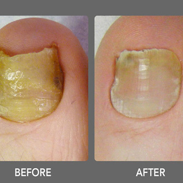 Laser Toenail Fungus Treatment Removal in West Palm Beach Before & After Photo 6
